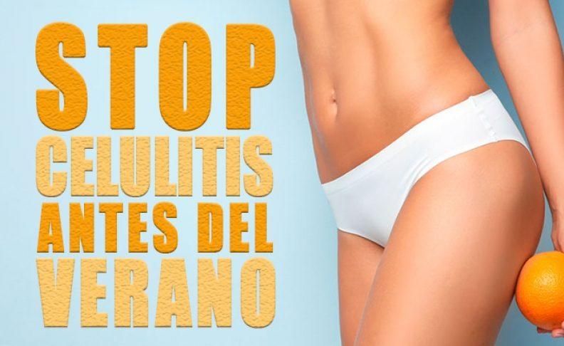 Stop Celulitis